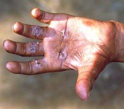 Hiv transmission masturbation cracked hands